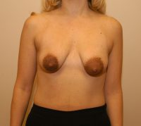 Breast Implants & Lift