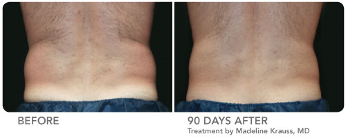 CoolSculpting Before and After Pictures Philadelphia, PA